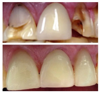 Root Canals and Crowns